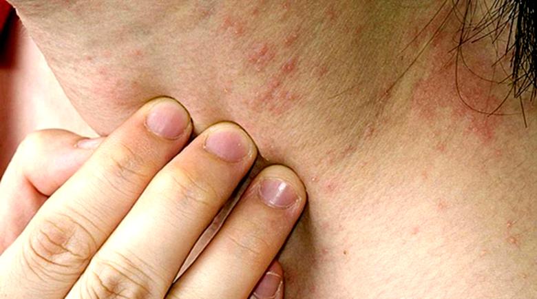 Хранителна алергия или хранителна непосимост?