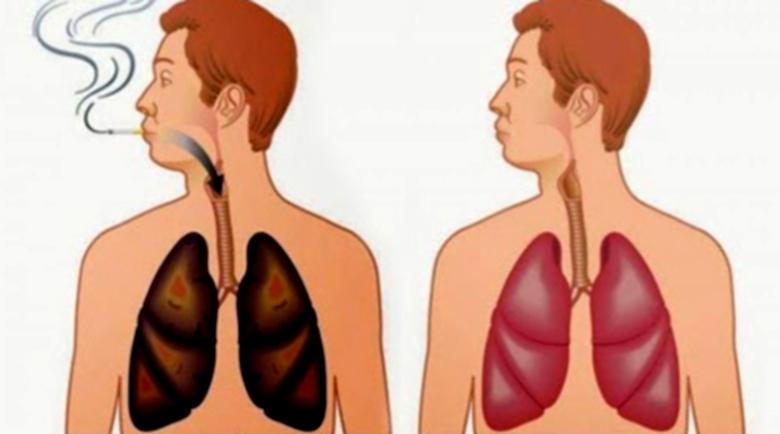 Как да прочистим белите дробове от никотин и катран