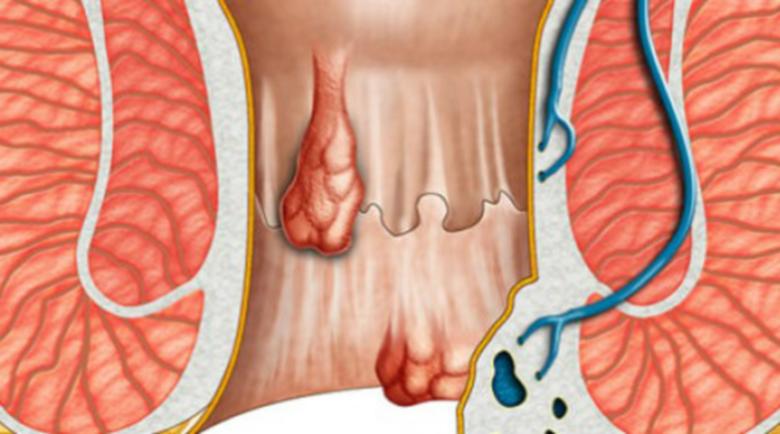 Как да спрем кървенето, когато имаме хемороиди