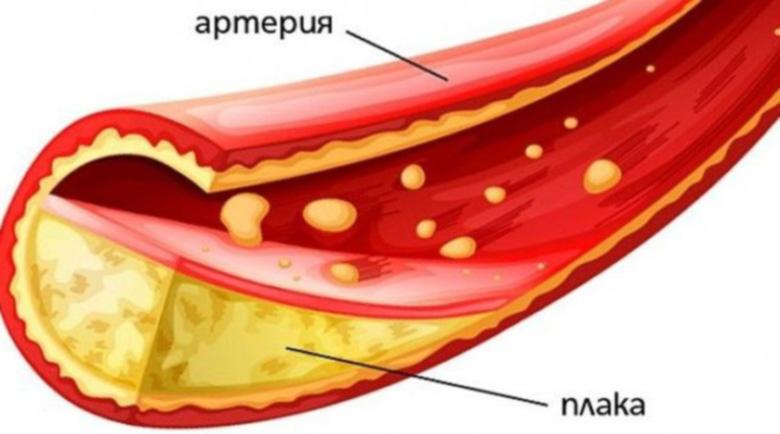 Немско лекарство за пречистване на артериите и сваляне на холестерола