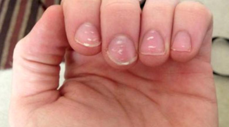 Белите петна по ноктите са опасни