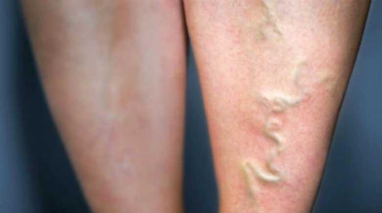 Варикозната болест: Всеки втори днес има разширени вени
