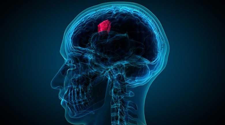 Какви са признаците на мозъчен тумор?