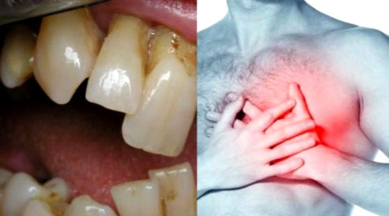 Инсултът и инфарктът тръгват от зъбите