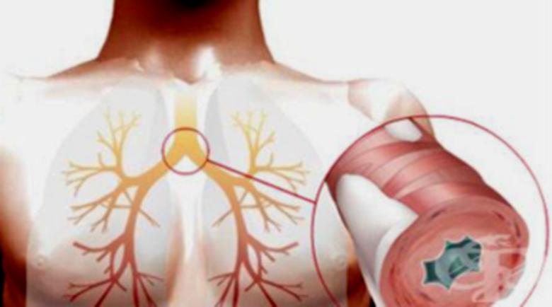 Бронхит и бронхиолит – лечение с билки, хомеопатия и добавки