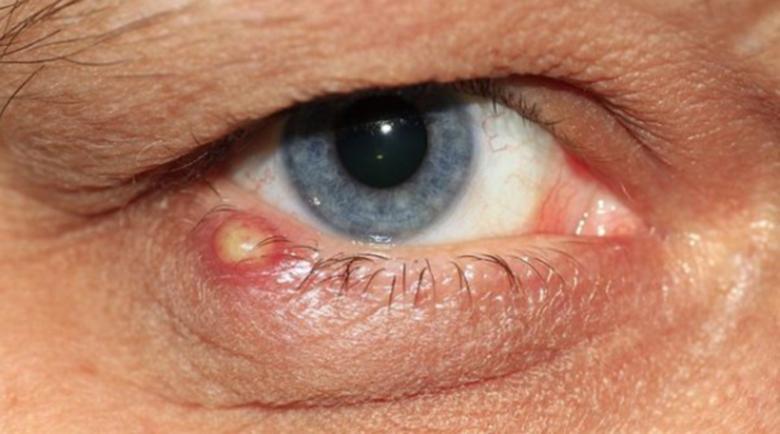Ечемик на окото – лечение, народни илачи и бабини рецепти
