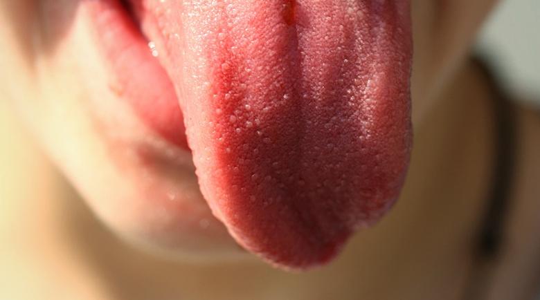 Езикът е моят лекар: Какви заболявания разкрива органът на вкуса