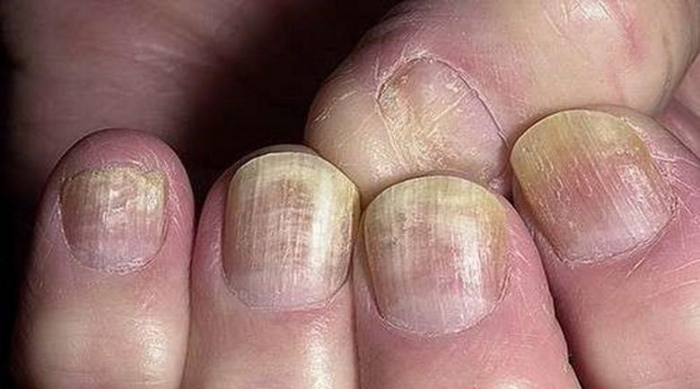 Гъбична инфекция по ноктите – тези 2 съставки ще ви помогнат
