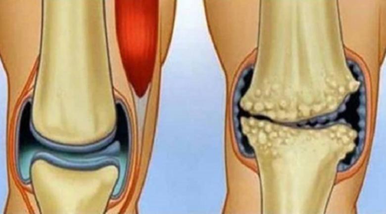 Подагра и остеоартрит – каква е връзката между двете заболявания?