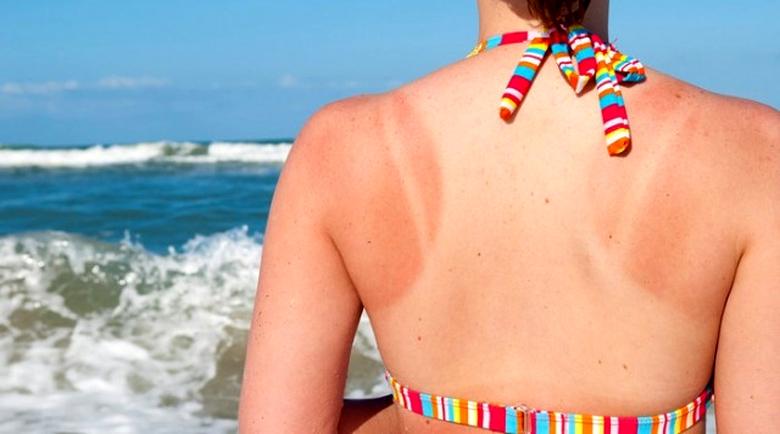 Грешките, които ще ви стъжнят живота след изгаряне на плажа