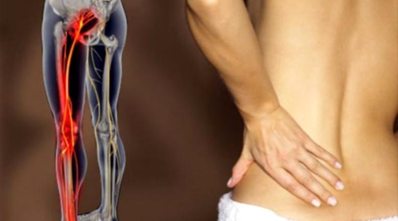 Прищипан седалищен нерв – как да се облекчи болката за 10 минути