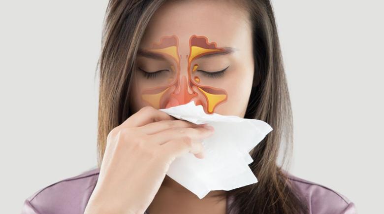 Синузитът – има ли помощ срещу това възпаление