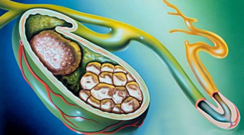 Хомеопатия при жлъчнокаменна болест