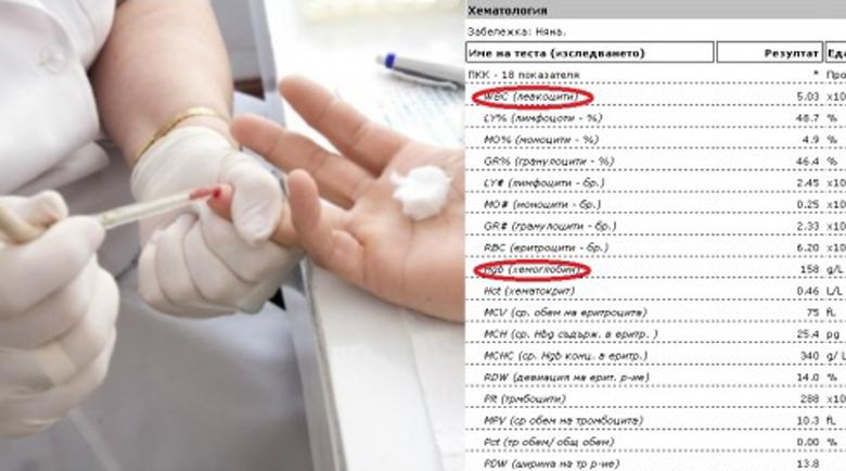 Тези 9 кръвни показатели показват всичко – как да разчетем кръвната картина