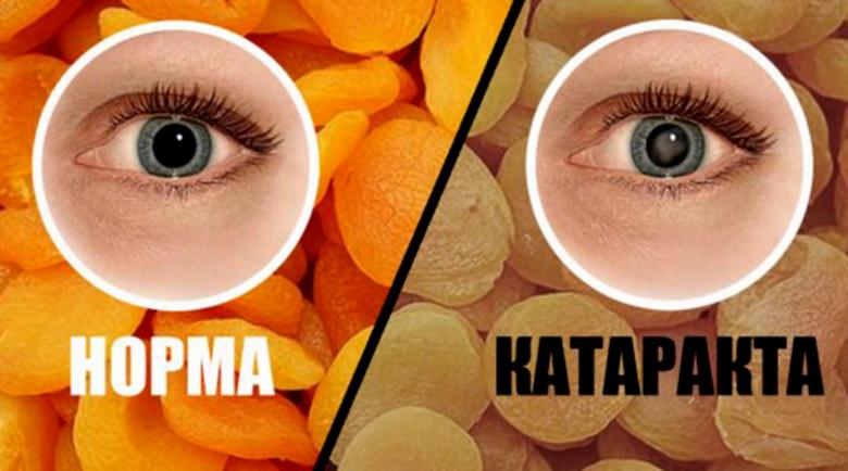 Естествена превенция на катаракта и рецепта за добро зрение