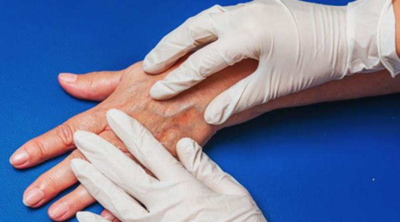 Разширени вени на ръцете: Защо се появяват и как се лекуват?