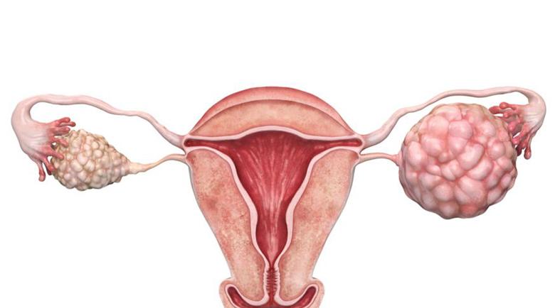 Тумор на яйчника – симптоми и лечение