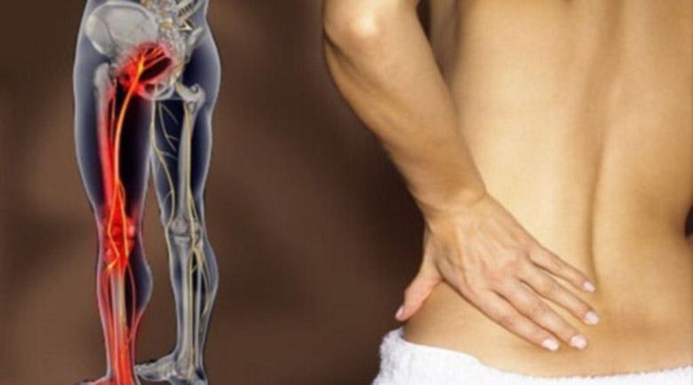 Лекарски съвет: Лечебни позиции при болки в гърба и ишиас