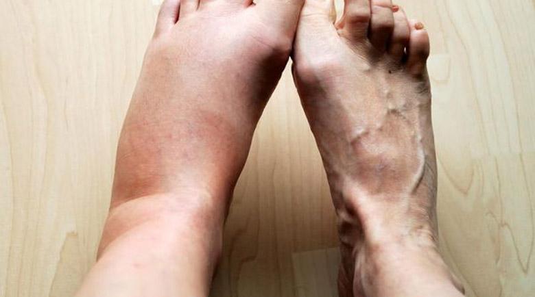 Първа помощ: Отоци около глезените, подуване на краката