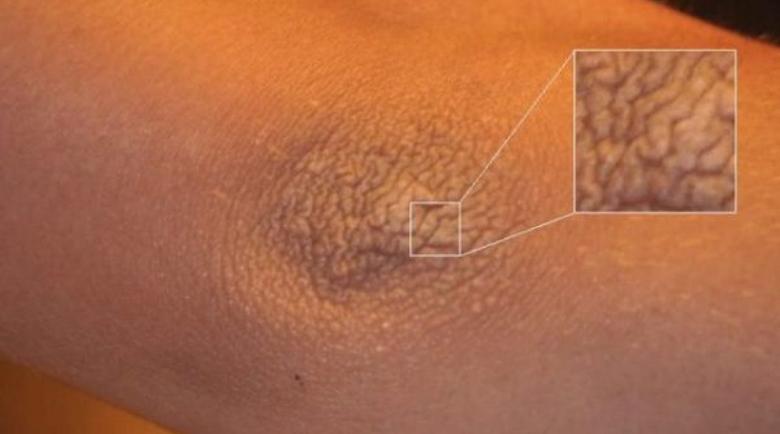 Синдром на мръсния лакът: Защо кожата на лактите е суха и как се лекува?