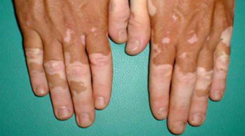 Как да премахнем белите петна по кожата?