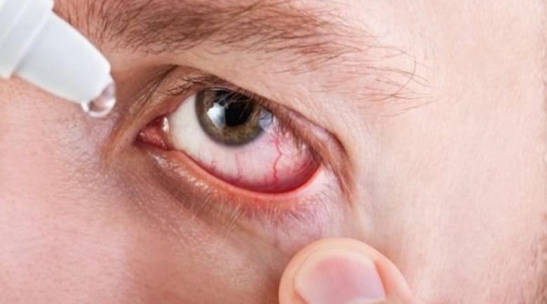 Първа помощ при очен кръвоизлив