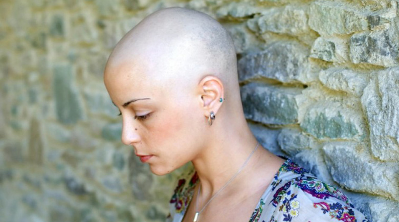 Ракът може да се открие по четири признака още на ранен етап
