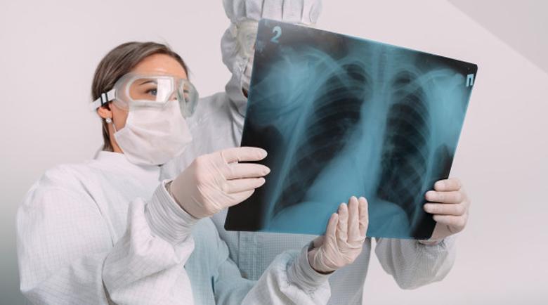 Закаляване, ваксина и витамини: Как да се предпазите от пневмония