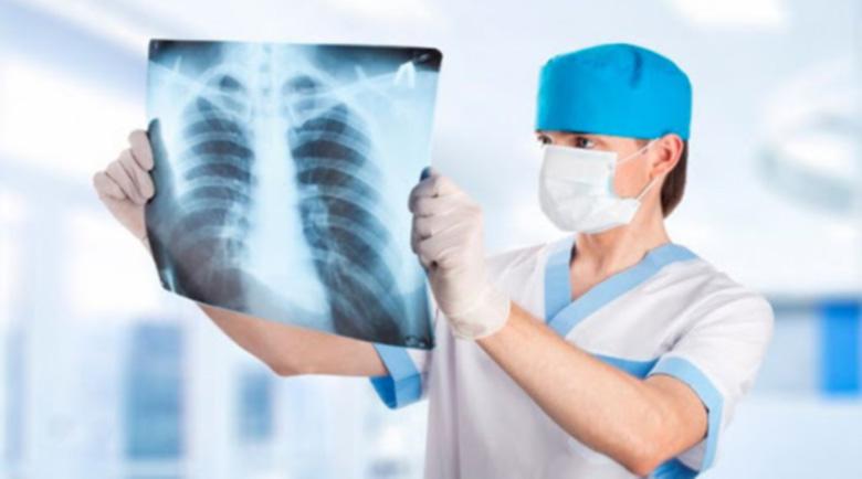 Компютърна томография или рентгенова снимка на белите дробове след Ковид?