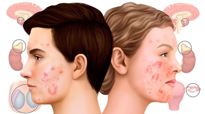 Хормонално акне – традиционно лечение и природни средства за защита