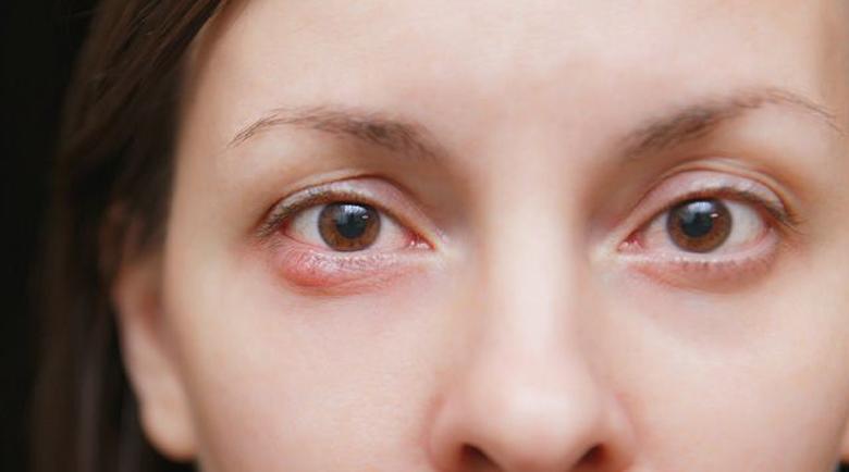 Oфталмологът съветва: Как бързо да излекувате ечемика?