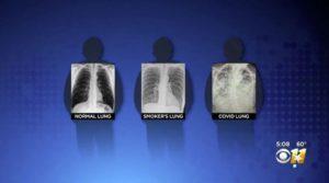 Как изглеждат белите дробове на пациент с COVID-19 и пушач