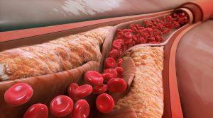 Лечение на атеросклероза с билки – рецепти от народния лечител Анатолий Маловичко