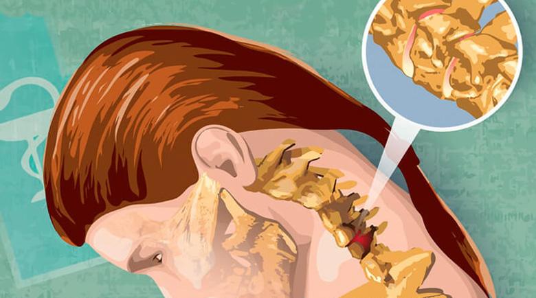 Болките във врата: Вижте как да спите, за да ги избегнете