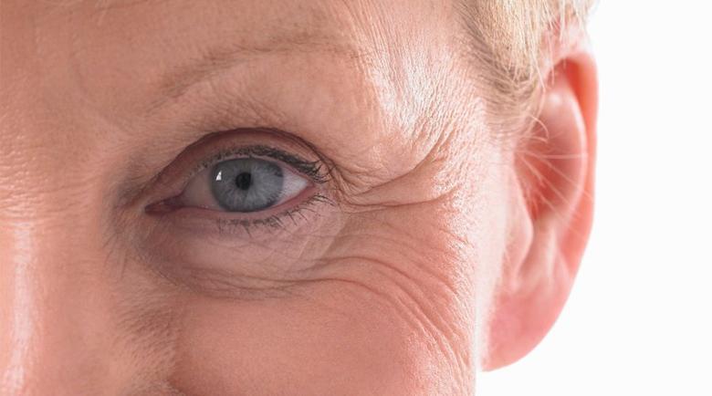 Стареещо око: Кога да се притеснявате за проблеми с клепачите