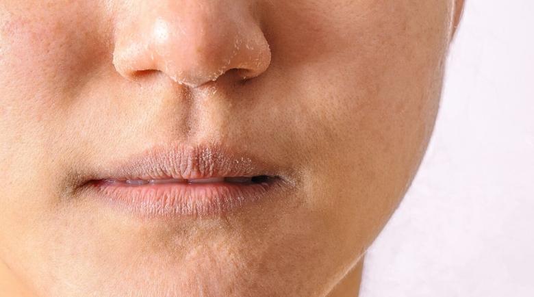 Лекар обяснява защо хроничната сухота на носа е опасна?