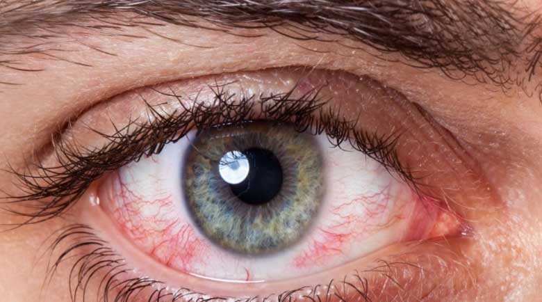 Вирусни инфекции на очите: Характеристики, лечение и профилактика