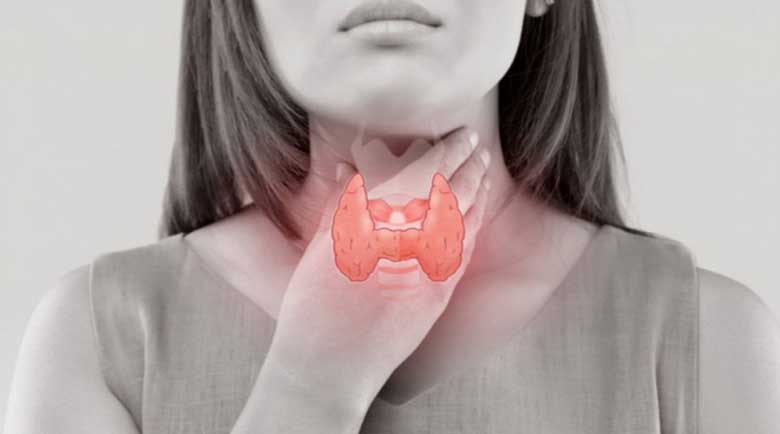 Как да хванем навреме рака на щитовидната жлеза?