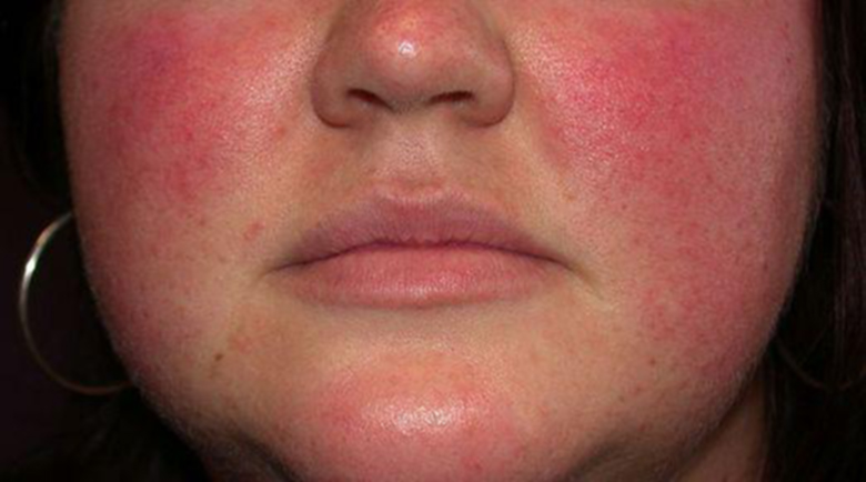Добре е да знаете: Нетипични причини за червени бузи