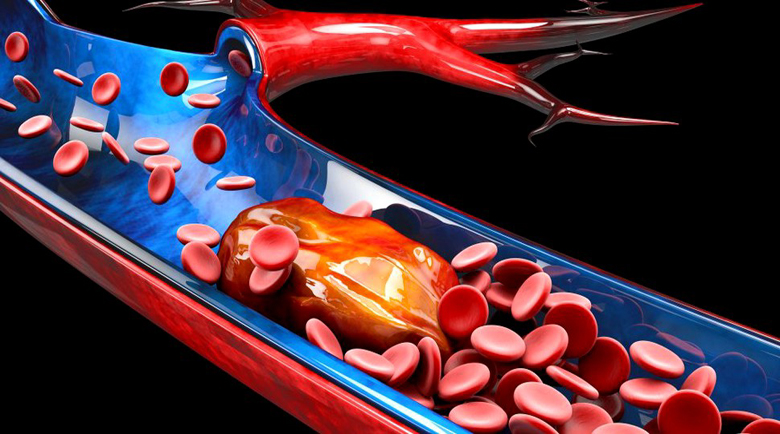 Тромбоза – какви са рисковете за здравето от образуването на тромб?