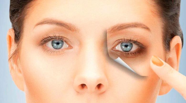 Неврологът отговаря: Защо торбичките и тъмните кръгове под очите са опасни?