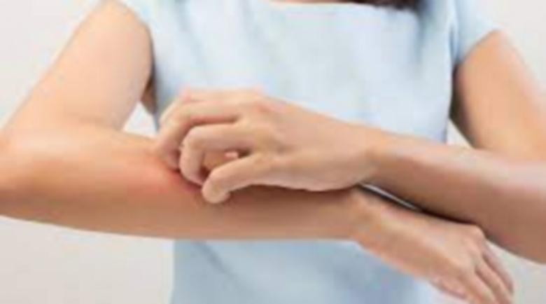 Сърбежът по ръцете и краката – аларма за висока захар