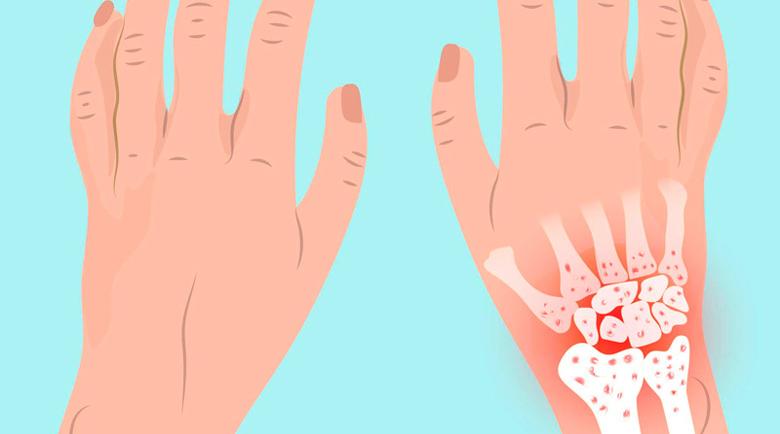 Билки и добавки за лечение на ревматоиден артрит