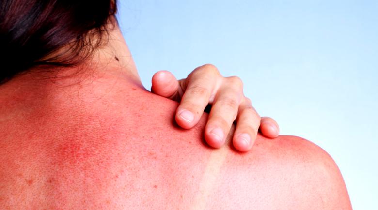 Лесни съвети за лечение на слънчево изгаряне