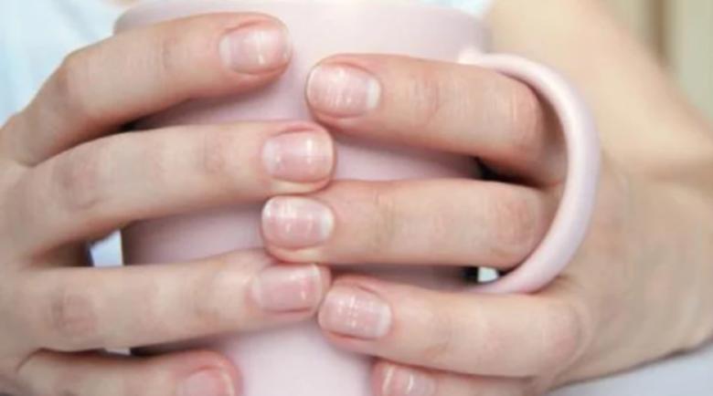За какви заболявания говорят лентите по ноктите